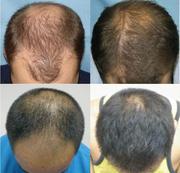 Средства от выпадения волос. Миноксидил и др. оптом от 300р.